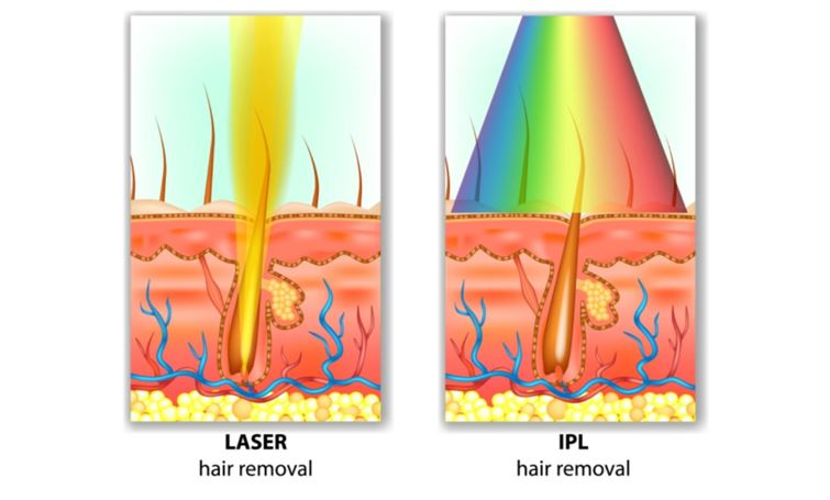 IPL Home Devices vs Laser Hair Removal